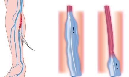 Małoinwazyjna metoda laserowa (EVLT)