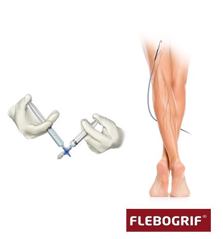 Flebogrif | małoinwazyjne leczenie żylaków
